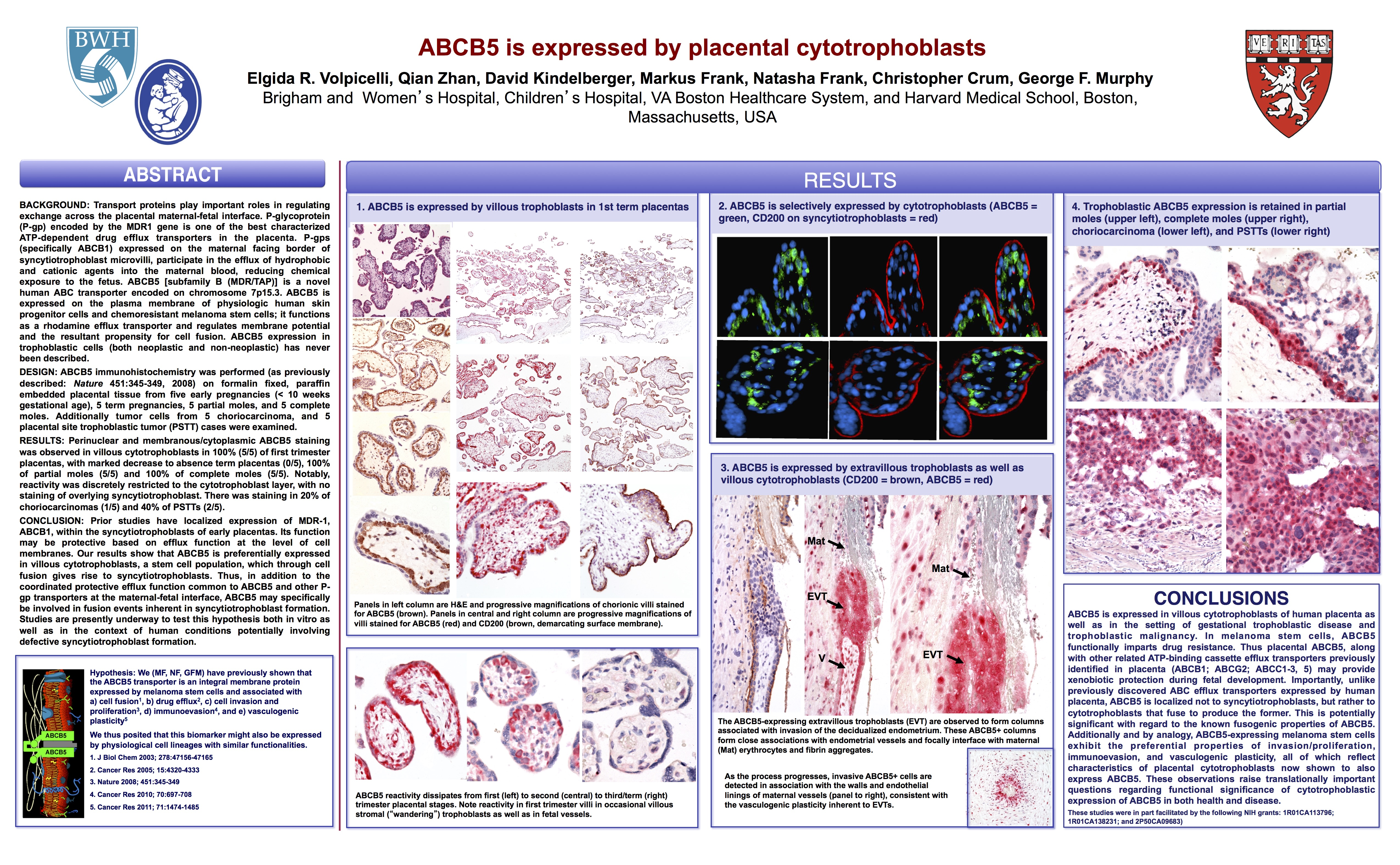 USCAP ABCB5 Poster FINAL